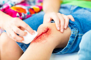 Treatment of wounds / Detailed description of all stages of treatment. Part 2